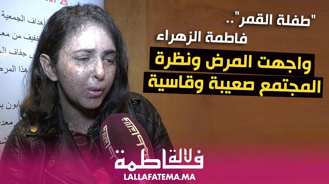 """""""طفلة القمر"""" فاطمة الزهراء غزواني.. واجهت المرض ونظرة المجتمع صعيبة وقاسية (فيديو)"""