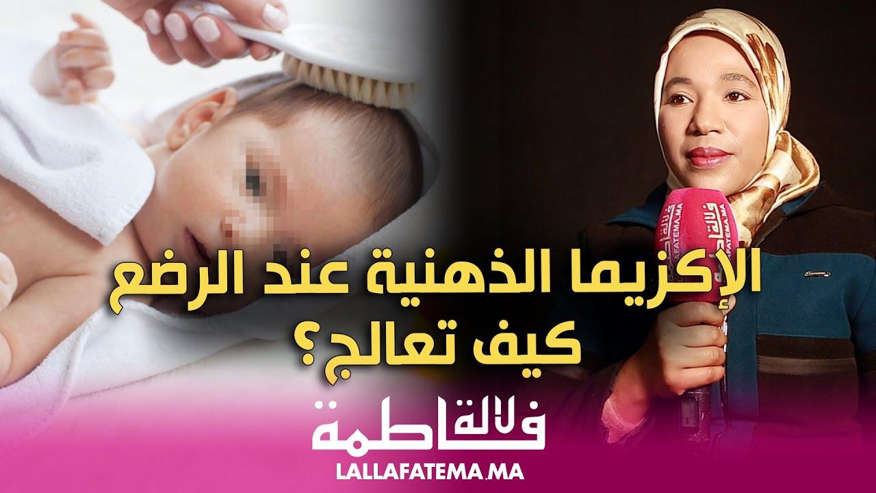 كل ما يجب معرفته عن الاكزيما الذهنية عند الرضيع مع أخصائية الجلد نادية رضوان (فيديو)